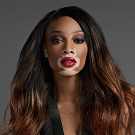 Winnie Harlow (Chantelle Brown-Young) Headshot